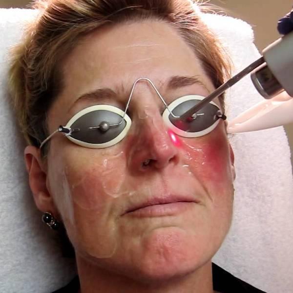 Биологична терапия при псориазис